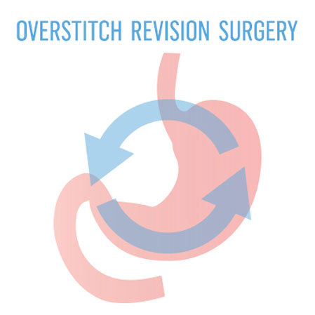 Overstitch Bariatric Surgery Revisions St Louis Missouri