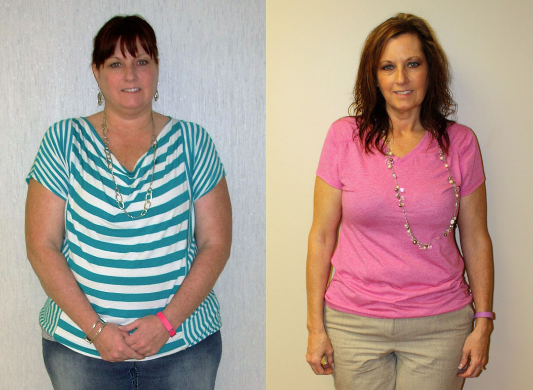 Gastric Sleeve Before After Photos Melissa St Louis St