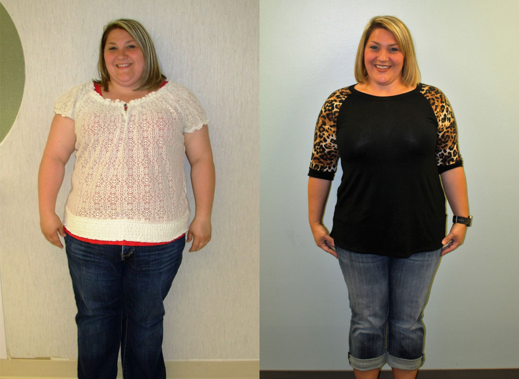 Bariatric Surgery Weight Loss Before and After in St. Louis