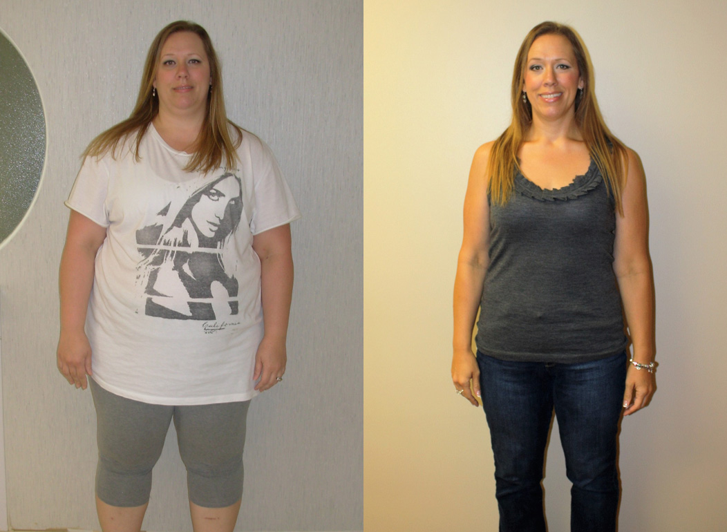 weight loss sleeve results