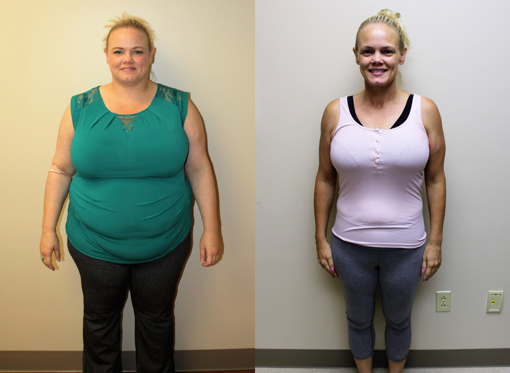 Gastric Sleeve Before and After in St. Louis