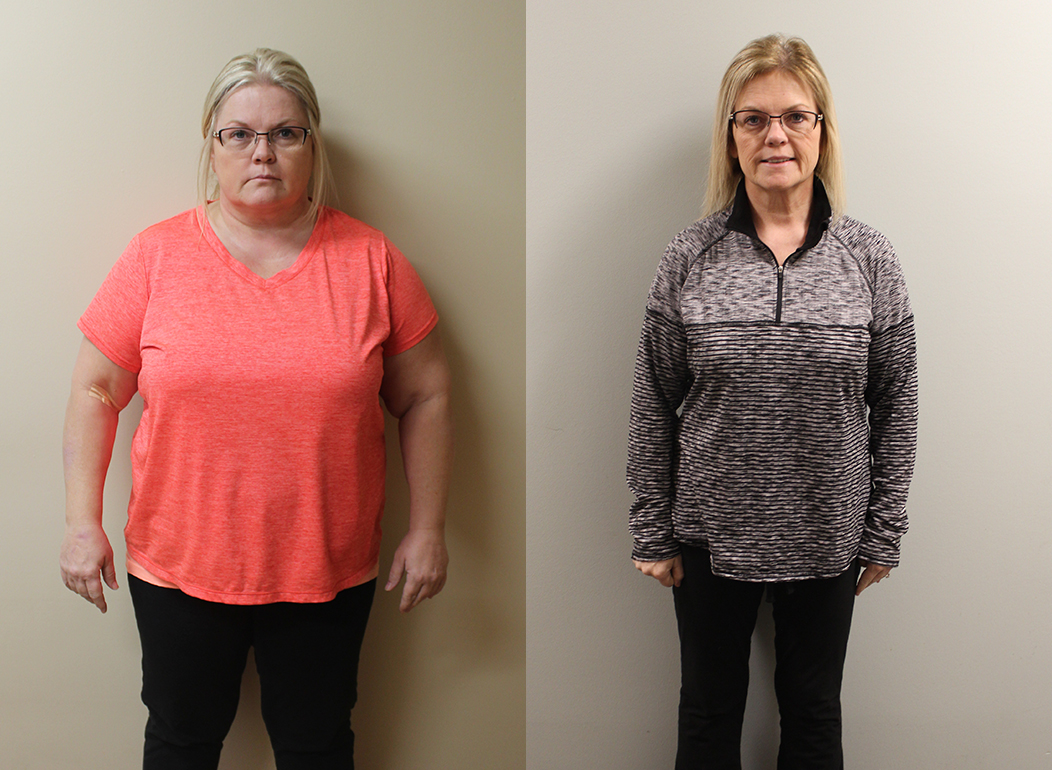 Kim's Weight Loss Before and After | St Louis Bariatrics