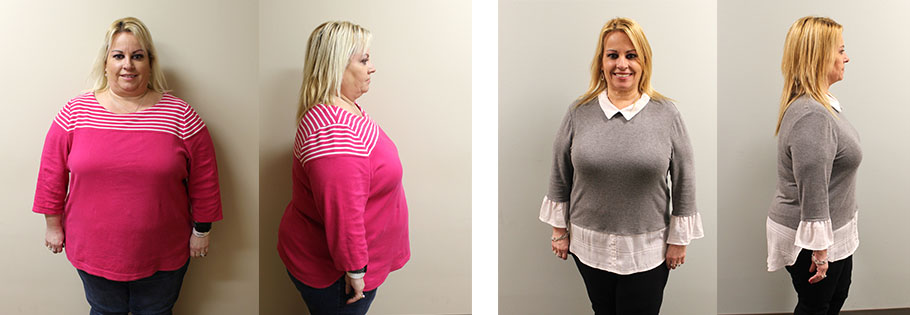 Julie's gastric sleeve success