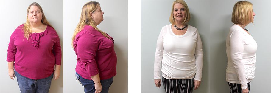 Sandra's weight loss transformation