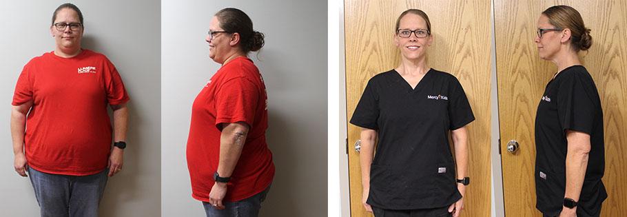 Amanda's weight loss transformation
