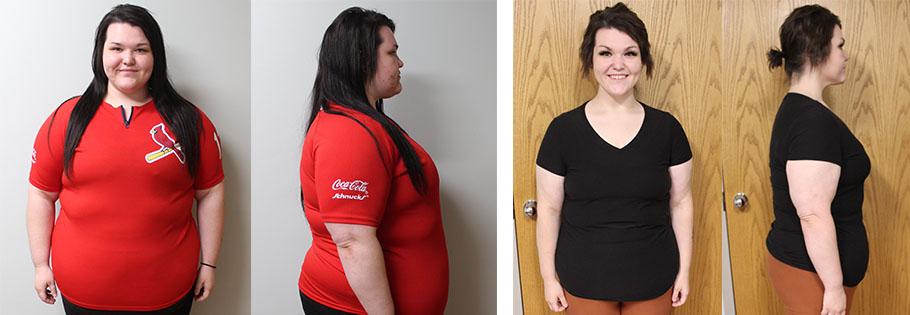 Elizabeth's weight loss transformation