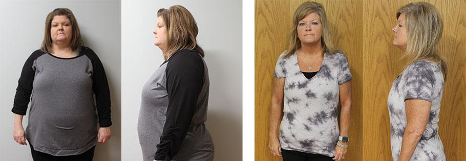 Elyssa's weight loss transformation