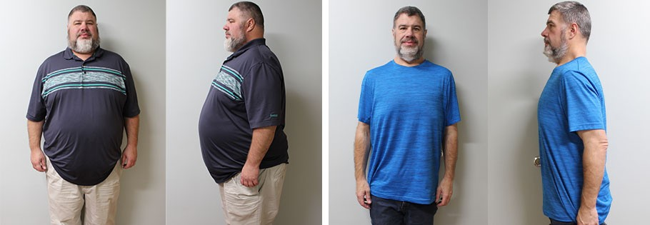 Andrew's weight loss transformation