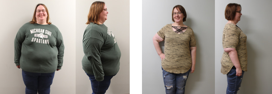 Suzanne's weight loss transformation